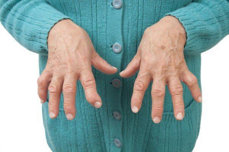 Bệnh viêm khớp dạng thấp